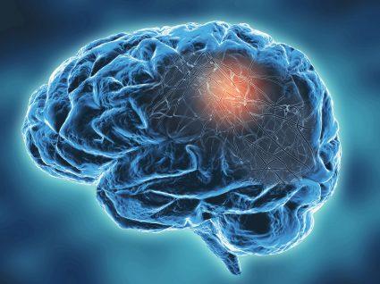 tipos de esclerose multipla