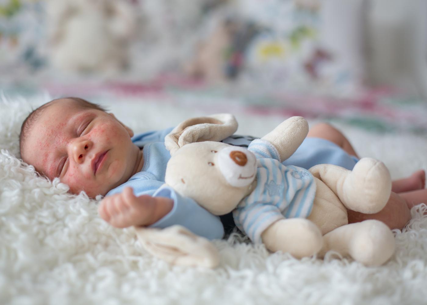 bebe a dormir com acne neonatal