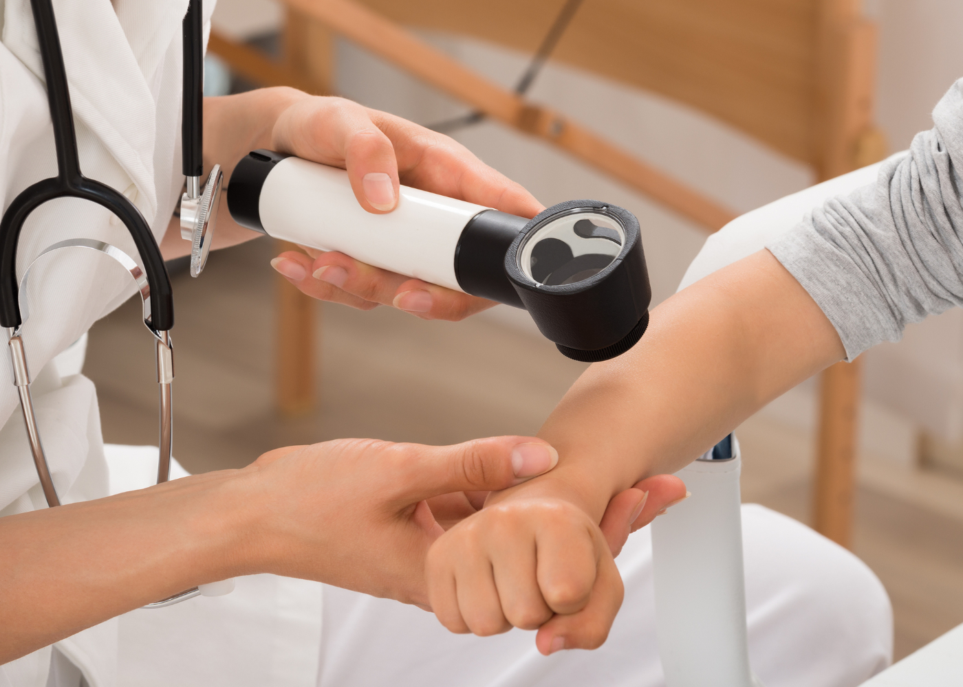 dermatite atopica diagnostico