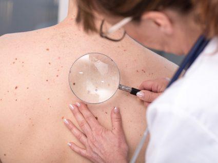 doencas de pele mais comuns