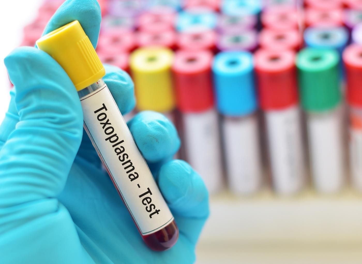 Imunidade à toxoplasmose: análises ao sangue