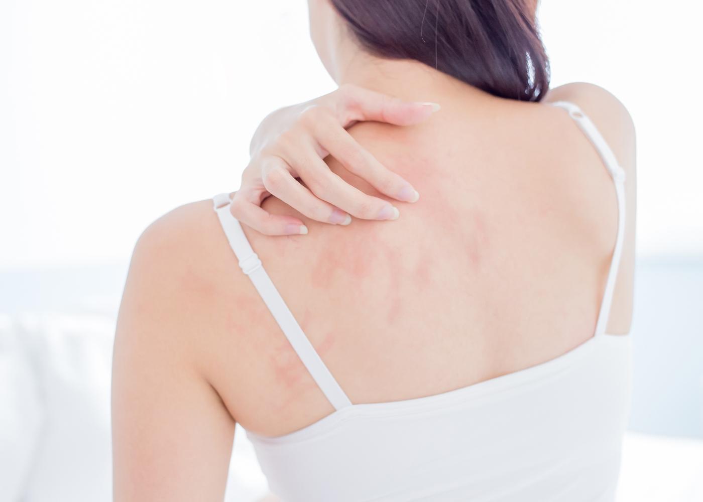 Mulher com alergia nas costas