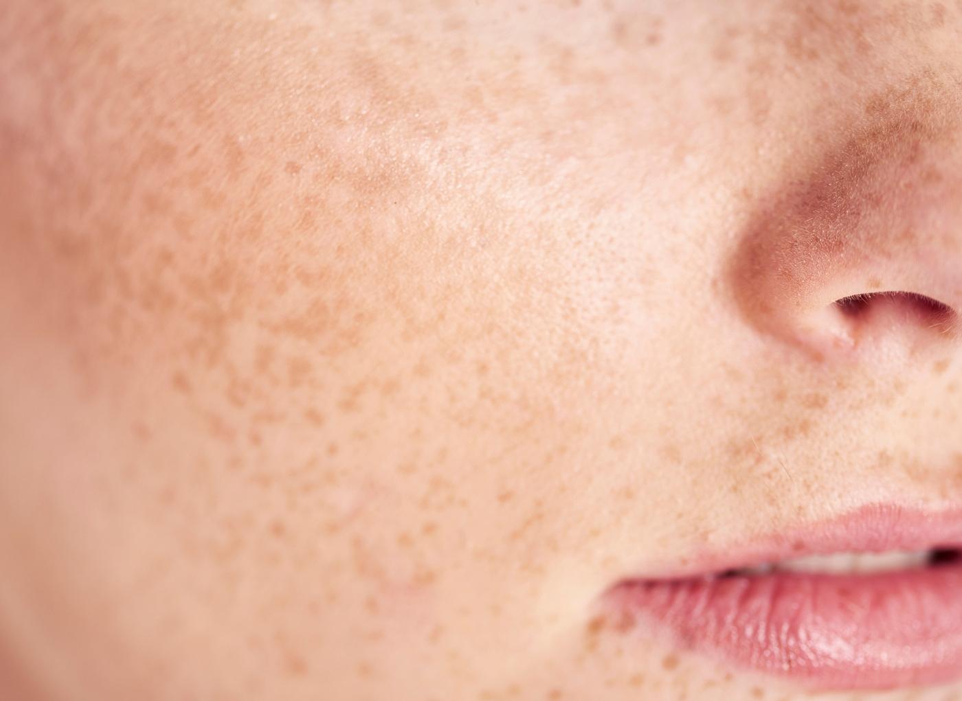 Mulher com hiperpigmentação