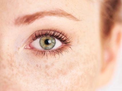 mulher com sinais de hiperpigmentação na face