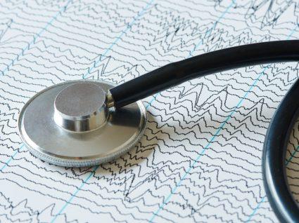 Ataque epilético: como se manifesta e como controlar