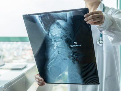 atrofia muscular espinal em que consiste