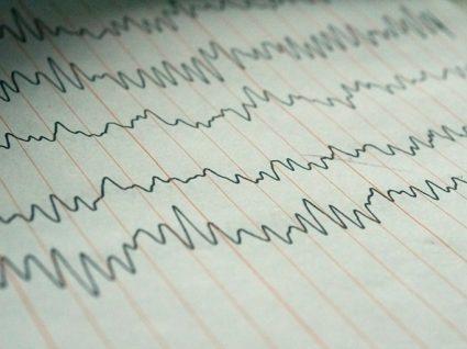A síndrome da epilepsia