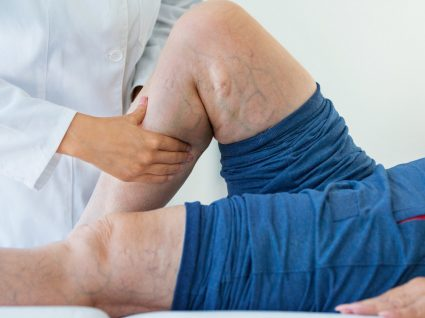 Tratamento das varizes: das medidas de autocuidado à cirurgia