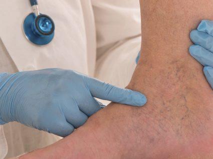 Cirurgia às varizes: quais as opões disponíveis atualmente?