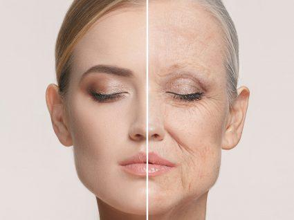 Flacidez no rosto? Descubra os melhores tratamentos para acabar com este problema