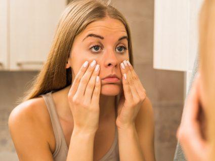 8 Cuidados para acabar com as olheiras e papos nos olhos