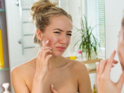 Estas são as 4 causas da acne e mostramos-lhe como combater este problema