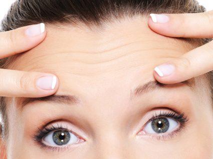 Rugas na testa? Conheça os melhores tratamentos para uma pele mais lisa