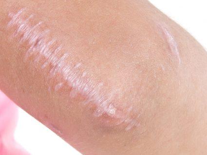 Cicatriz queloide: em que consiste e quais as formas de a tratar!