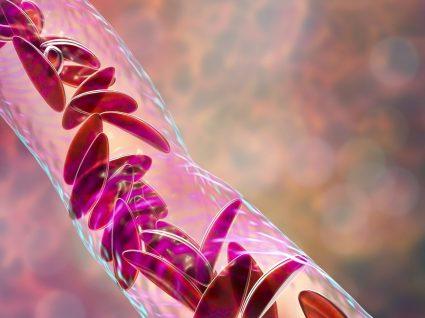 Anemia falciforme: saiba tudo sobre esta anemia hereditária