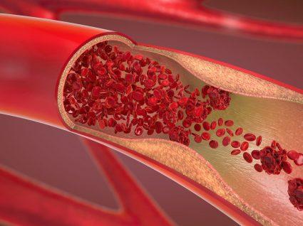 Anemia hemolítica: tudo o que precisa de saber sobre a doença