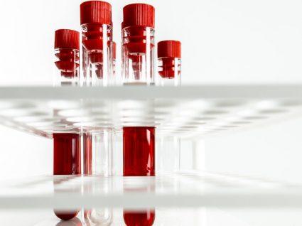 Anemia perniciosa: como saber lidar com esta patologia?
