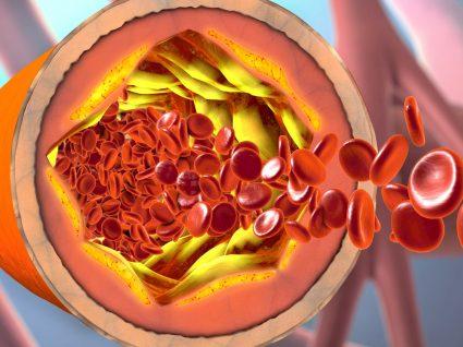 5 Tipos de enfarte que deve conhecer: informe-se!