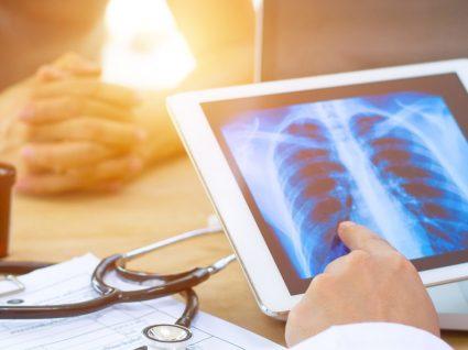 Cancro do pulmão: fatores de risco, sintomas e tratamento