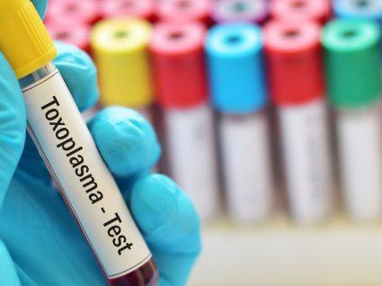 Sou imune à toxoplasmose, o que é que isso significa?