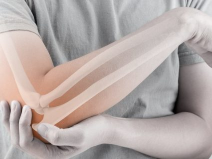 Como pode prevenir o aparecimento de osteoporose?