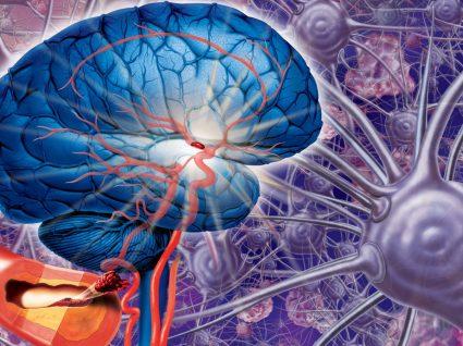 Tudo o que precisa de saber sobre o Aneurisma Cerebral