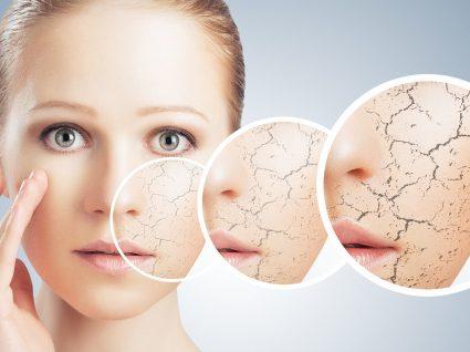 4 sinais e dicas para cuidar de uma pele desidratada