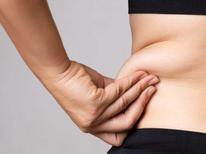 Lipodistrofia: o que fazer para tratar a distribuição anormal de gordura no corpo