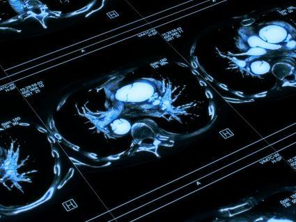 O que sabe sobre o aneurisma da aorta?