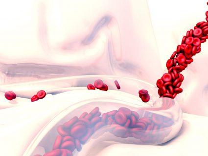 Vasculite: em que consiste, sintomas e tratamento mais adequado