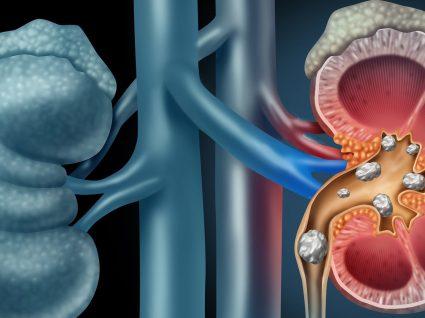 O que pode causar os cálculos renais?