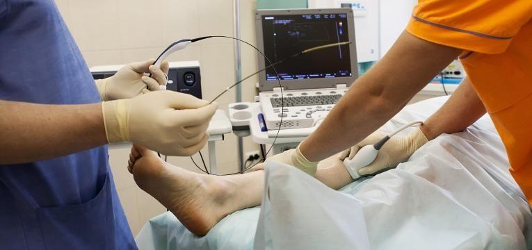 cirurgia as varizes