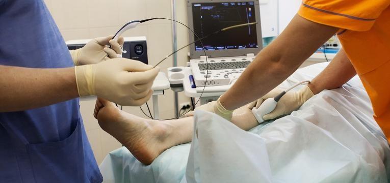 cirurgia varizes