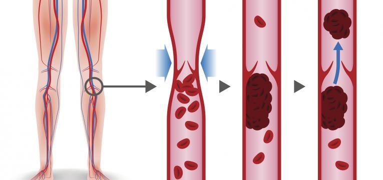 mecanismo trombose venosa profunda