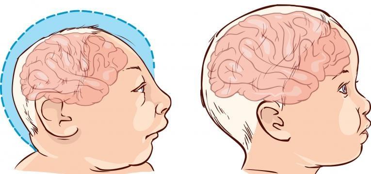 microcefalia e tamanho normal de cabeca