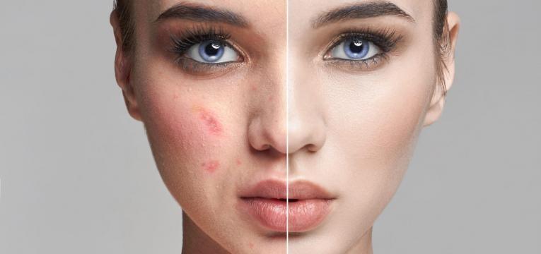 causas da acne