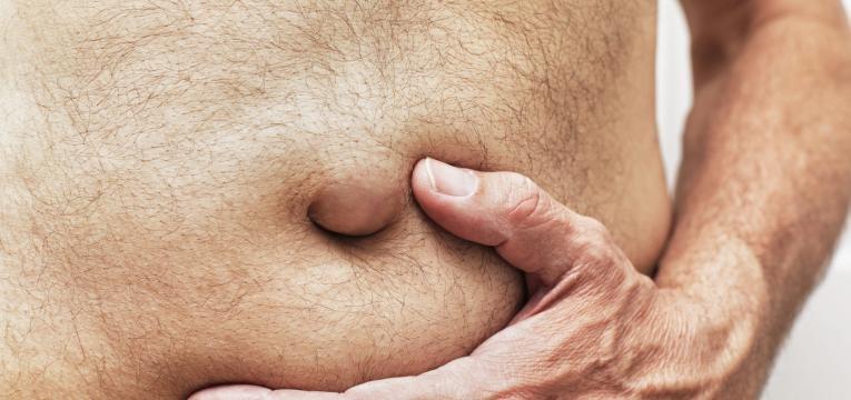 tipos de hernias umbilical