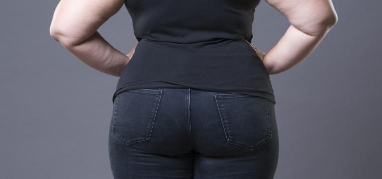 hernia no estomago mulher com excesso de peso