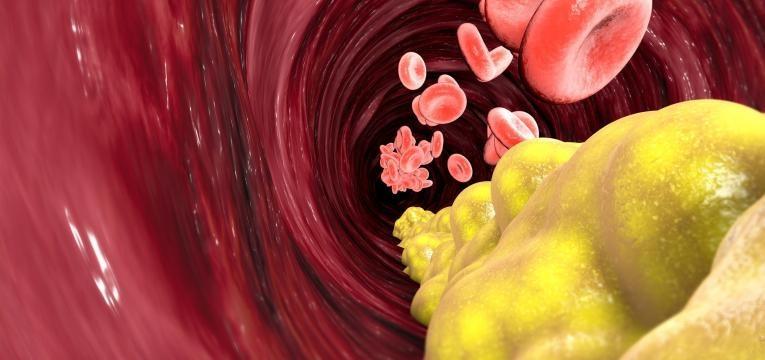 colesterol vinho