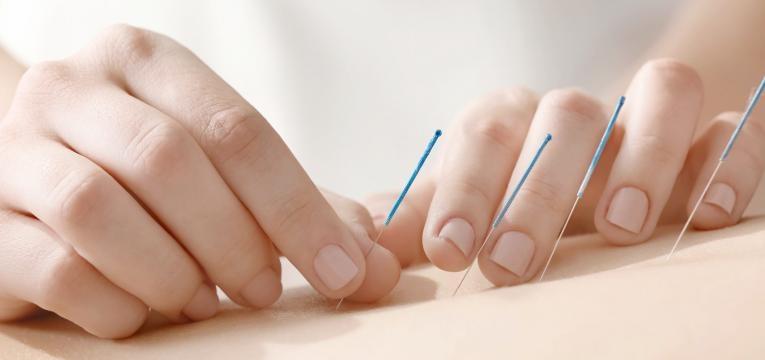 parto normal acupuntura