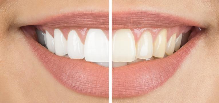 vinagre de sidra branqueamento dentario