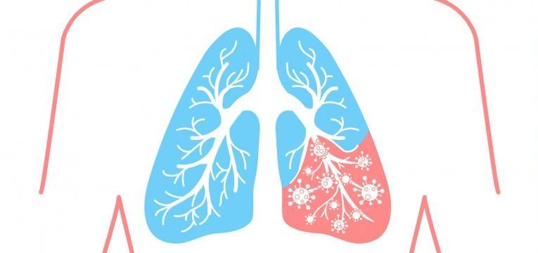 enfarte pulmonar como ocorre