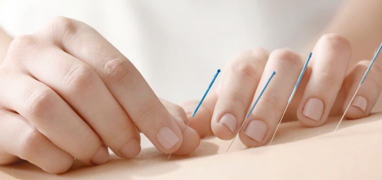 nevralgia acupuntura