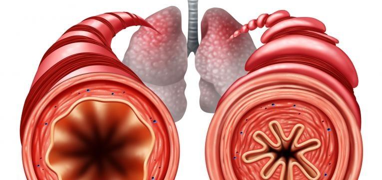 broncodilatadores processo