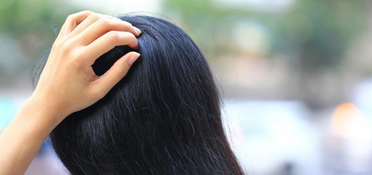 alopecia micose couro cabeludo