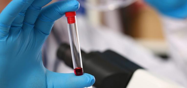fator rhesus amostra de sangue