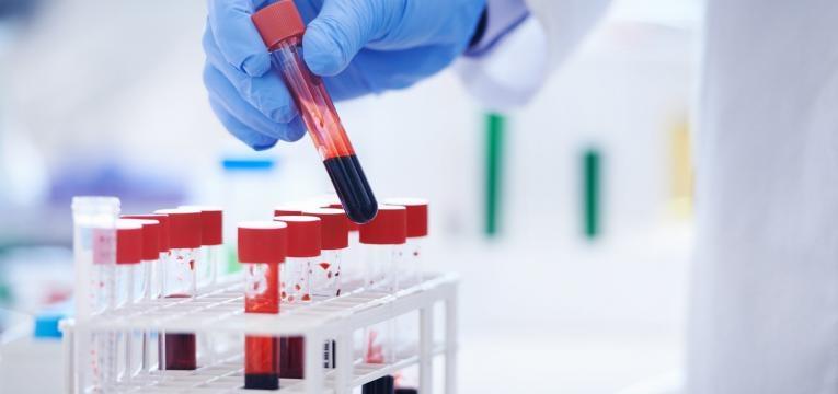 caes e gatos dadores de sangue hemograma completo