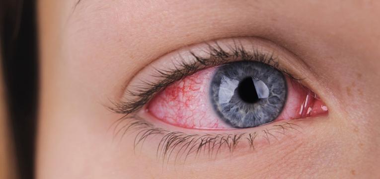herpes ocular vermelhidao no olho
