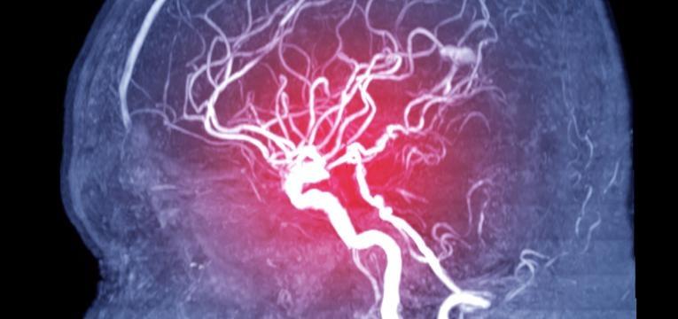 aneurisma situado na cabeca