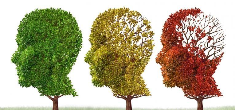 Alzheimer perda de memoria